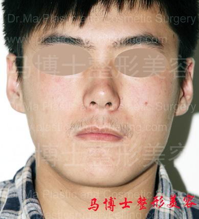 下颌角及颏成形术前