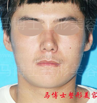 下颌角及颏成形术后